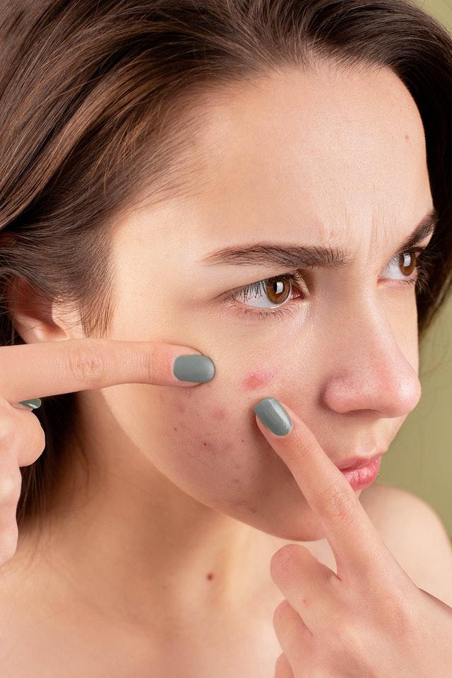Une femme avec des acnés sur le visage